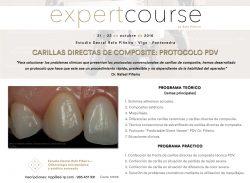 Expert Course Carillas Directas de Composite